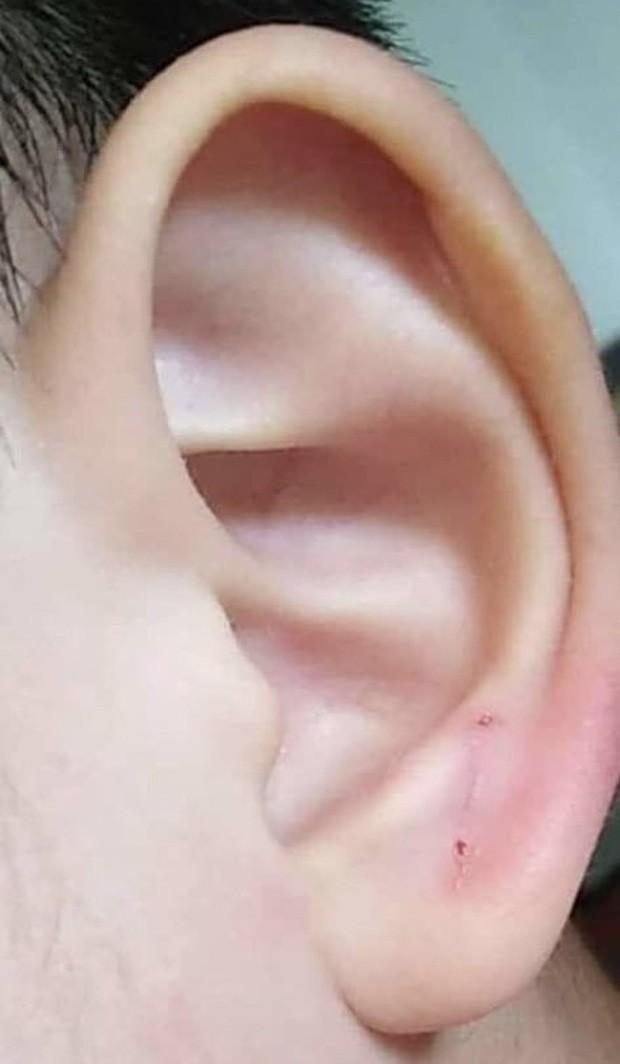 Cậu bé 4 tuổi bị giáo viên dập ghim vào tai, phản ứng của hiệu trưởng khiến nhiều người phẫn nộ - ảnh 1