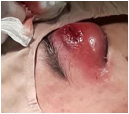 Sốc: Bé trai 14 tuổi nhiễm vi khuẩn hầu họng gây hoại tử hốc mắt, áp xe trong hộp sọ - Ảnh 1.