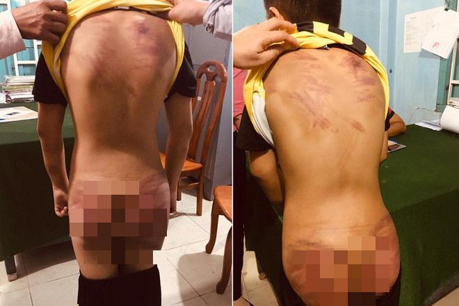 Công an Bình Thuận kết luận vụ thầy tu đánh thậm tệ bé 11 tuổi - Ảnh 1.