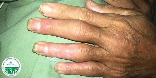 Nghe lời chữa bệnh vảy nên theo thầy lang, bệnh nhân lãnh hậu quả nặng nề là các khớp chân - tay - gối sưng to đến biến dạng  - Ảnh 1.