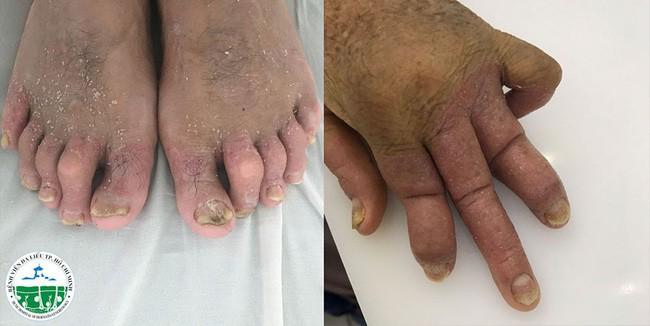 Nghe lời chữa bệnh vảy nên theo thầy lang, bệnh nhân lãnh hậu quả nặng nề là các khớp chân - tay - gối sưng to đến biến dạng  - Ảnh 2.