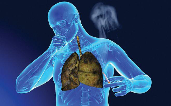 3 căn bệnh ung thư ám ảnh khiến người Việt  tốn bạc triệu điều trị nhưng tử vong vẫn cao - Ảnh 2.