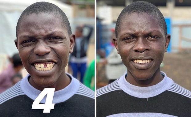 Nha sĩ Brazil được tôn làm người hùng sau khi làm răng miễn phí, đem lại nụ cười cho hàng trăm người dân nghèo khổ - Ảnh 2.