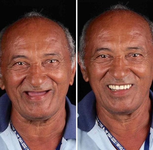 Nha sĩ Brazil được tôn làm người hùng sau khi làm răng miễn phí, đem lại nụ cười cho hàng trăm người dân nghèo khổ - Ảnh 3.