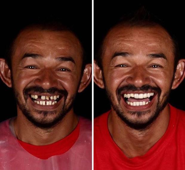 Nha sĩ Brazil được tôn làm người hùng sau khi làm răng miễn phí, đem lại nụ cười cho hàng trăm người dân nghèo khổ - Ảnh 4.