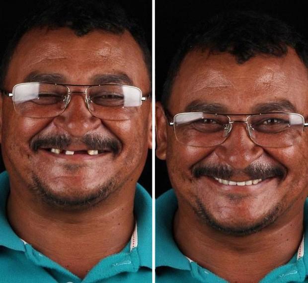 Nha sĩ Brazil được tôn làm người hùng sau khi làm răng miễn phí, đem lại nụ cười cho hàng trăm người dân nghèo khổ - Ảnh 6.