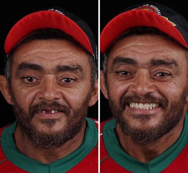 Nha sĩ Brazil được tôn làm người hùng sau khi làm răng miễn phí, đem lại nụ cười cho hàng trăm người dân nghèo khổ - Ảnh 9.