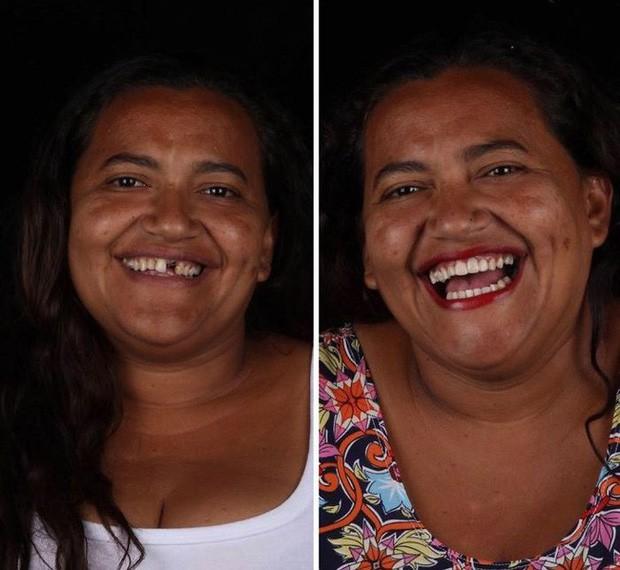 Nha sĩ Brazil được tôn làm người hùng sau khi làm răng miễn phí, đem lại nụ cười cho hàng trăm người dân nghèo khổ - Ảnh 10.