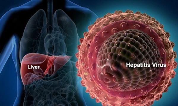 Diễn tiến của bệnh viêm gan siêu vi B như thế nào? - Ảnh 1.