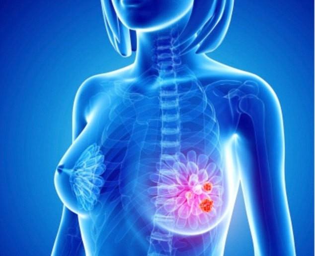 Người mang những gen này phải cẩn thận vì có nguy cơ cao bị kích hoạt tế bào ung thư - Ảnh 1.