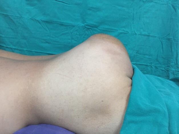 Người đàn ông không nằm, ngồi được vì đeo khối u khổng lồ đằng sau mông - Ảnh 1.