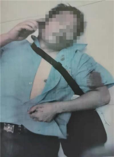 Nam thanh niên bị kẻ lạ chặn đường đánh sau khi đăng clip bày tỏ tình cảm với 1 cô gái - Ảnh 1.
