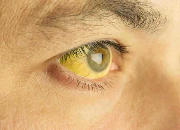 Nếu 4 dấu hiệu này xuất hiện trên mặt thì gan đã bị tổn thương trầm trọng, đừng chần chừ mà hãy đi khám gấp - Ảnh 3.