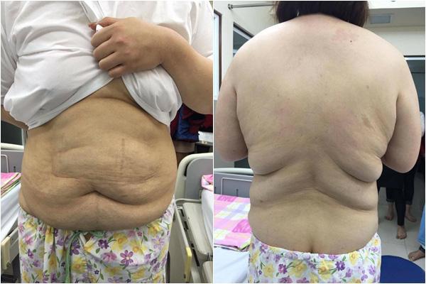 Biến mất 2 năm, hút 8 lít mỡ ra khỏi cơ thể và hình ảnh hiện tại gây sốc của hot girl ngàn cân - ảnh 3