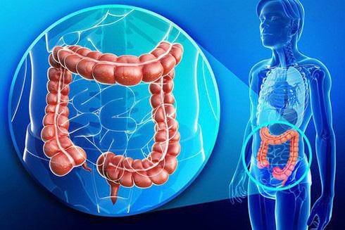 4 triệu chứng trên cơ thể cảnh báo ung thư đại tràng ghé thăm - Ảnh 4.