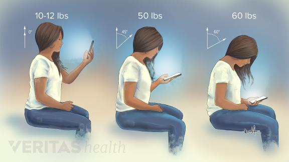 Tự nhiên đau cổ, vai: Bạn có đang dùng điện thoại thông minh không? - Ảnh 1.