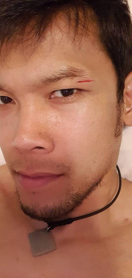 Thủ môn Thái Lan khoe ảnh bị rách mí mắt sau pha va chạm gây tranh cãi với Đoàn Văn Hậu - Ảnh 1.