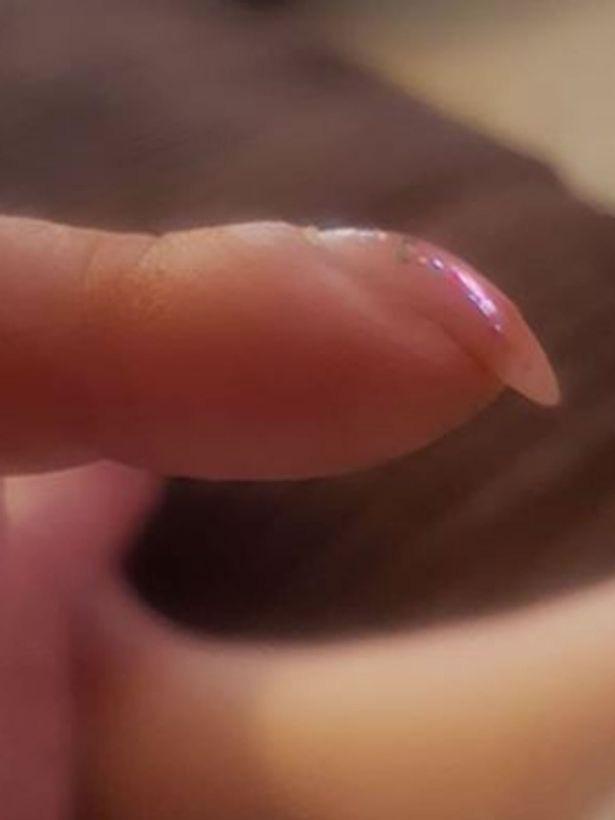 Nhờ bài kiểm tra đơn giản với móng tay, bạn có thể sớm nhận biết mình có bị ung thư phổi hay không - Ảnh 2.