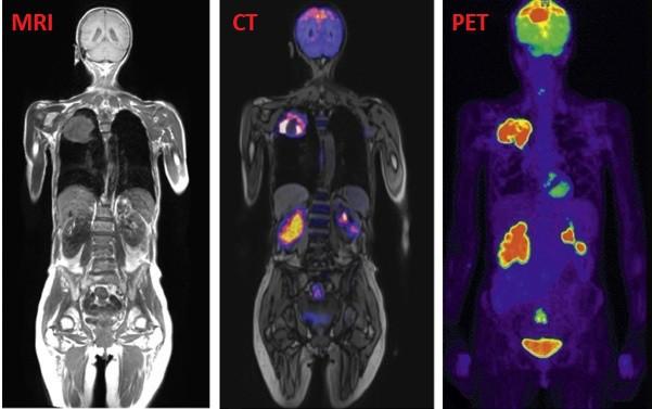 Tầm soát ung thư bằng PET/CT: Giàu như nước Nhật không dùng, người Việt lại lạm dụng vô tội vạ - Ảnh 5.