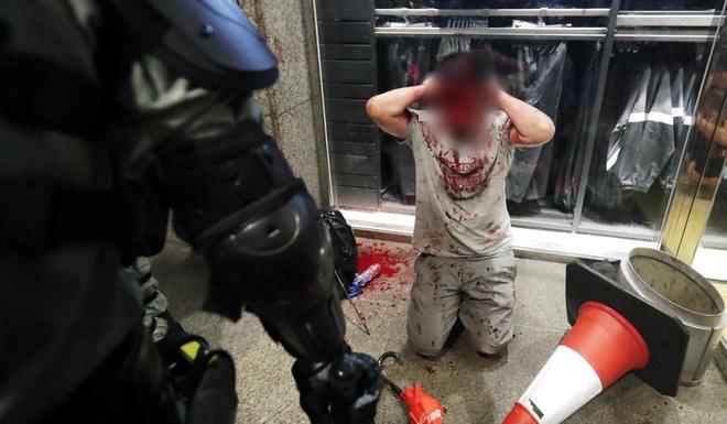 Hong Kong: Kinh hoàng vụ tấn công bằng dao đẫm máu, nghi phạm cắn đứt tai quan chức địa phương - Ảnh 1.
