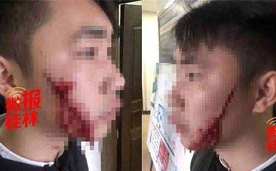 Ôm nhau lần cuối tại sân ga trước khi chia tay, thiếu nữ cầm dao rạch mặt bạn trai