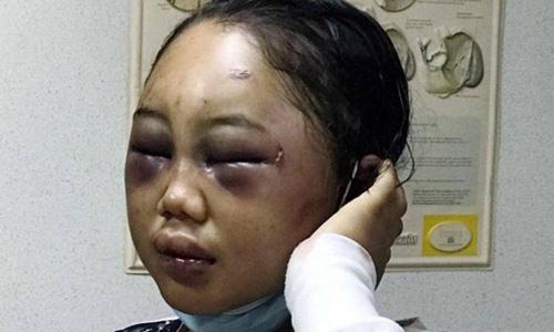 Thiếu nữ Indonesia làm osin ở Hong Kong: Bị lột đồ, hành hạ đến thân tàn ma dại và vấn nạn đau đầu về luật bảo vệ người giúp việc ở nước ngoài - Ảnh 6.