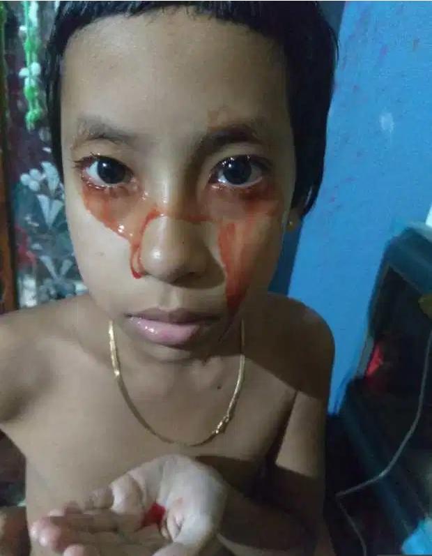 Mắc bệnh hiếm gặp khiến máu tiết ra liên tục 5 lần/ngày trên toàn bộ cơ thể, cuộc sống của cô bé 8 tuổi thay đổi hoàn toàn - Ảnh 1.