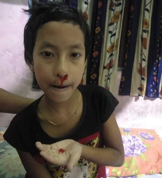 Mắc bệnh hiếm gặp khiến máu tiết ra liên tục 5 lần/ngày trên toàn bộ cơ thể, cuộc sống của cô bé 8 tuổi thay đổi hoàn toàn - Ảnh 2.