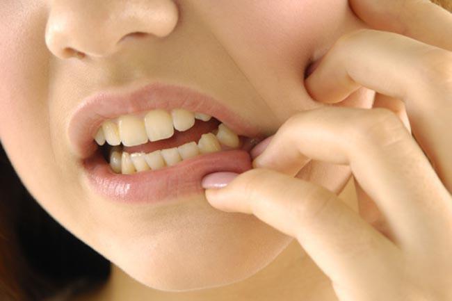 Nhận biết tình trạng sức khỏe qua các dấu hiệu của miệng - Ảnh 9.