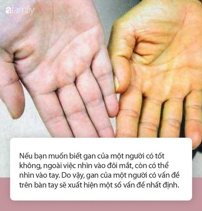 Có 3 triệu chứng này xuất hiện trên bàn tay chứng tỏ gan của bạn đang kêu cứu - Ảnh 1.