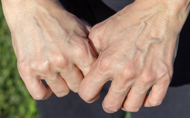 Có 3 triệu chứng này xuất hiện trên bàn tay chứng tỏ gan của bạn đang kêu cứu - Ảnh 4.