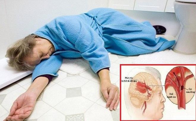 Trời lạnh, bệnh đột quỵ gia tăng: Có 3 dấu hiệu sau phải đến viện càng sớm càng tốt - Ảnh 1.