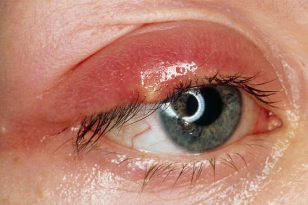 Mụn nổi ở mí mắt trên: Dấu hiệu và cách xử lý để bạn bớt cảm thấy khó chịu - Ảnh 1.