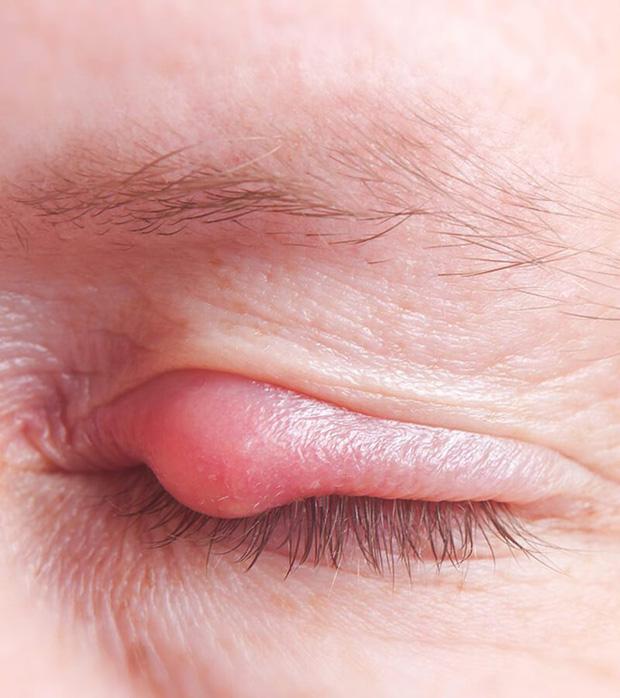 Mụn nổi ở mí mắt trên: Dấu hiệu và cách xử lý để bạn bớt cảm thấy khó chịu - Ảnh 3.