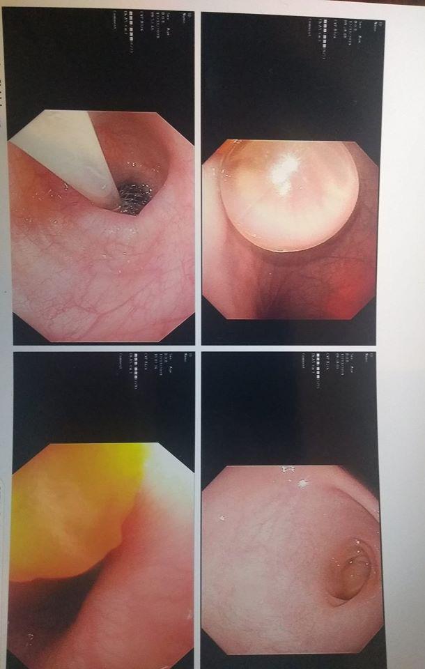 Các hạt nở phình to trong ruột Everett ngăn không cho thức ăn vào trong dạ dày, còn có một hạt nằm ngay van môn vị của cậu bé.