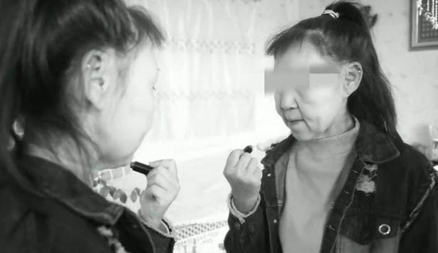 Thiếu nữ 15 tuổi bị gọi là quái vật vì gương mặt như bà lão 60 - Ảnh 1.