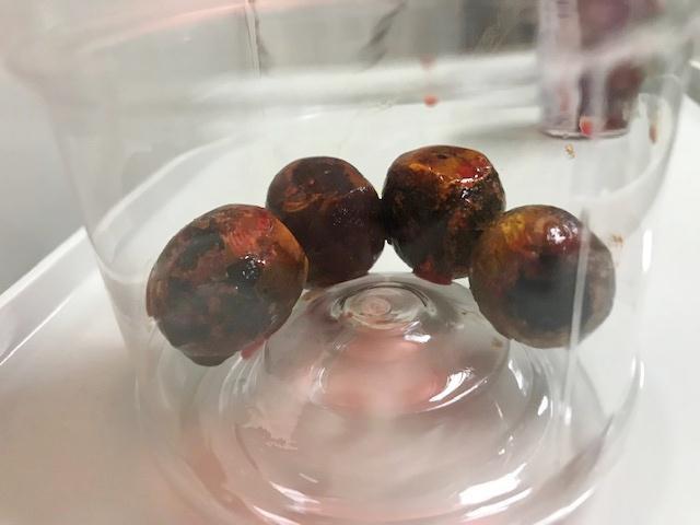 Nhìn tưởng 4 quả mận trái mùa, hóa ra lại là sỏi mật to đùng vừa lấy ra khỏi cụ ông - Ảnh 1.