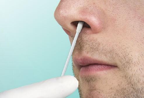 Dấu hiệu nhận biết bệnh cúm và cách phân biệt với cảm lạnh - Ảnh 9.