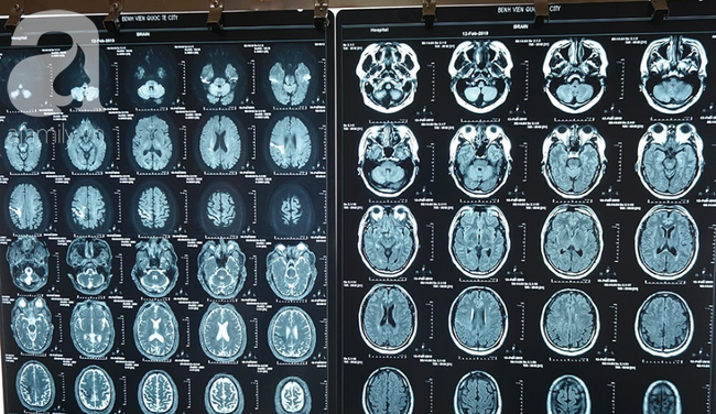 Ngủ dậy thấy tay chân yếu: Coi chừng mắc căn bệnh liên quan đến não gây tàn phế hàng đầu như người đàn ông này - Ảnh 2.