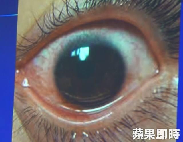 Cô gái trẻ 25 tuổi vô tình làm hỏng đôi mắt của mình trong 2 năm vì thường xuyên nhìn màn hình điện thoại kiểu này - Ảnh 2.