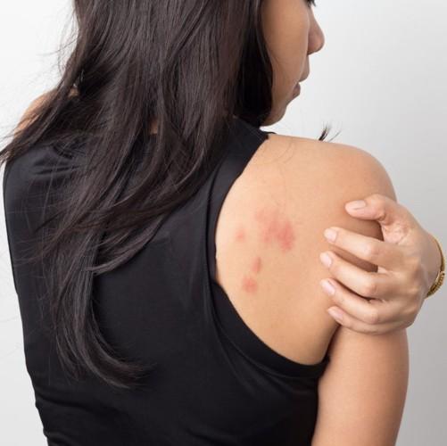 Những triệu chứng báo hiệu bạn có vấn đề nghiêm trọng về sức khỏe - Ảnh 2.