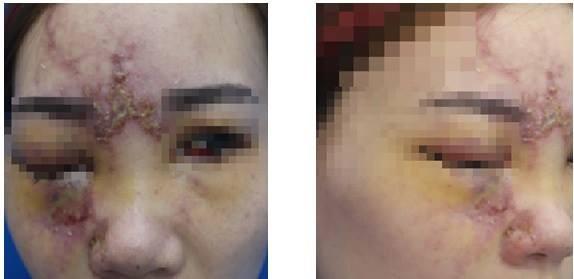 Cô gái 27 tuổi mù một bên mắt sau khi nâng mũi - Ảnh 1.