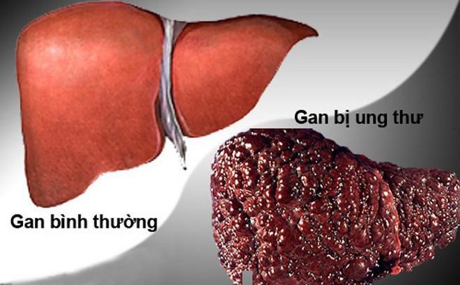 Chuyên gia ung bướu chỉ ra dấu hiệu lá gan đang ốm yếu và nguy cơ cao mắc ung thư - Ảnh 1.