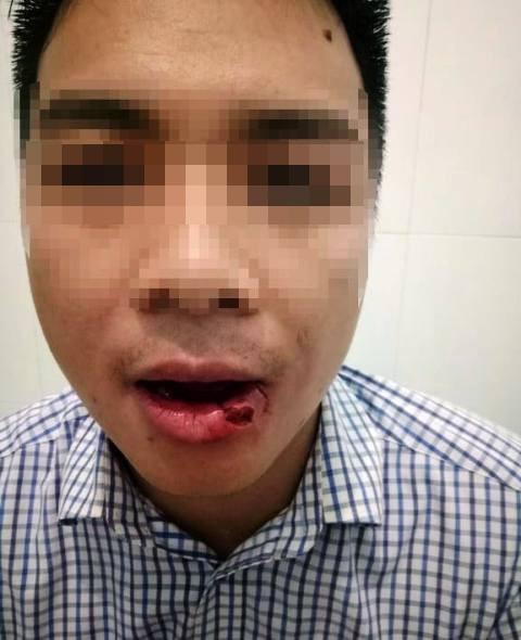 Thầy giáo ném thanh sắt làm cán bộ tòa án gãy 5 chiếc răng: Tôi buồn và rất hối hận - Ảnh 2.