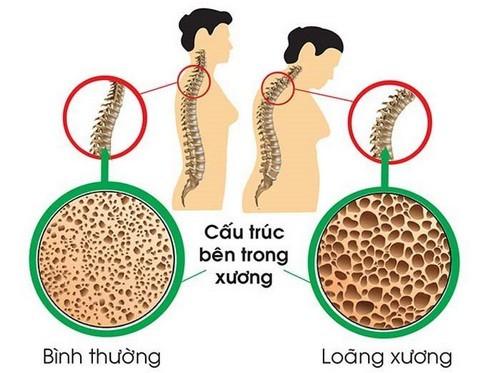 3 bài thuốc hay trị loãng xương - Ảnh 1.