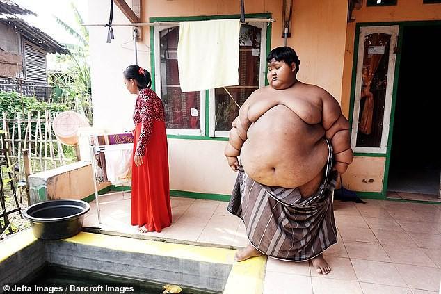 Từng được coi là 'bé trai nặng nhất thế giới', cậu bé Indonesia béo đến không thể đi học nổi giờ ra sao - Ảnh 2.