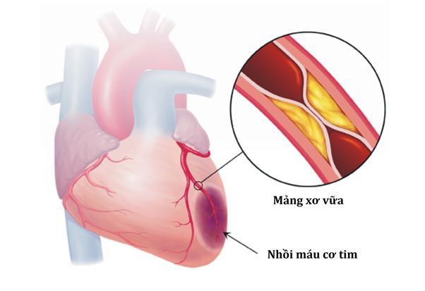 Những yếu tố làm giảm tuổi thọ của người bệnh tiểu đường và cách khắc phục - Ảnh 2.