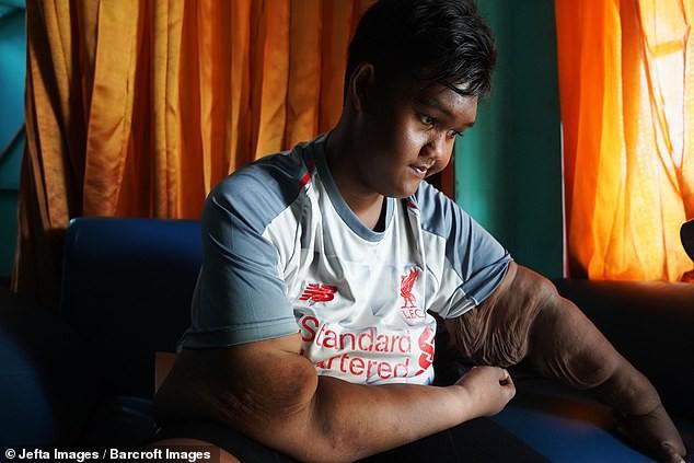 Từng được coi là 'bé trai nặng nhất thế giới', cậu bé Indonesia béo đến không thể đi học nổi giờ ra sao - Ảnh 10.