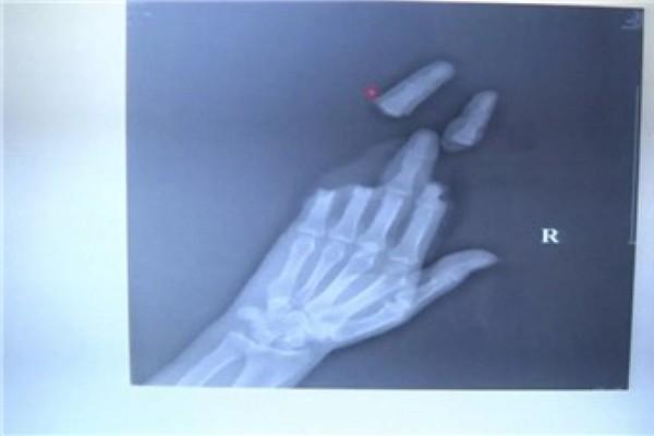 Đi thả diều, nam thanh niên bị đứt lìa 3 ngón tay vì gió quá mạnh - Ảnh 2.