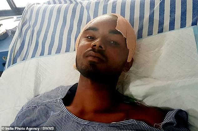 Ấn Độ: Bị thanh sắt dài gần nửa mét đâm xuyên qua đầu, công nhân xây dựng vẫn may mắn thoát chết - Ảnh 5.